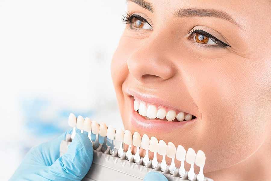 Чистка полірування відбілювання зубів